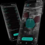 Resultados del software de detección de ThinkSono DVT se publican en Nature digital medicine (npj)